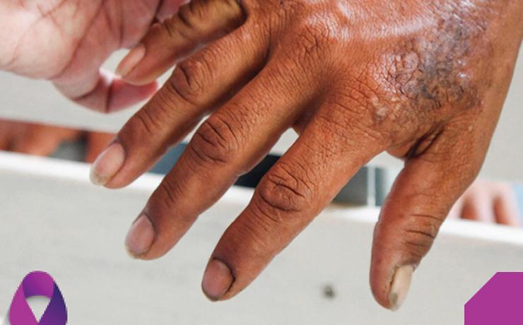 Dia Mundial de Luta contra a Hanseníase